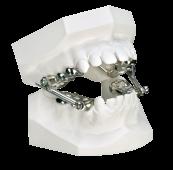 tandtechniek orthodontie orthodonthiek tandheelkunde