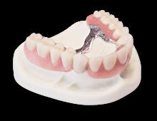 kunstgebit tandtechniek orthodontie volledige prothese protheses prothesen