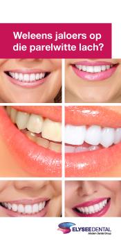 patientenflyers orthodontie tandtechniek tanden witten