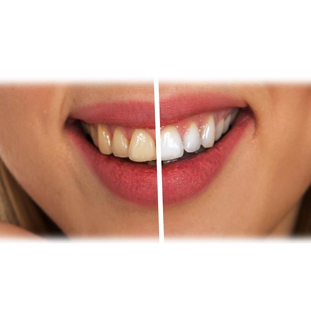 tanden bleken witten tandtechniek informatie